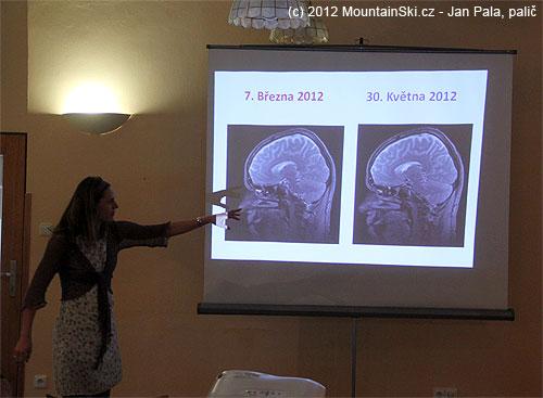 MRI před expedicí a po expedici– rozdíl žádný!