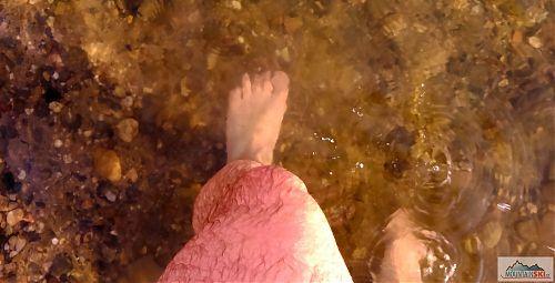 Teplota vody měla za následek nestandardní zbarvení pokožky